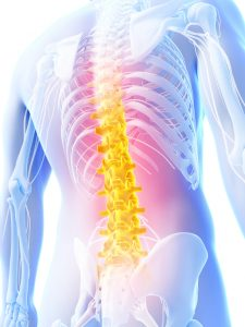 When negligence causes back and spinal cord injuries, trust Colorado Springs Back and Spinal Cord Injury Attorney Kenneth Shakeshaft to help you get the compensation you deserve.